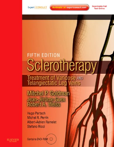 Sclerotherapy Expert Consult - Online and Print: Treatment of Varicose and Telangiectatic Leg Veins, Text with DVD