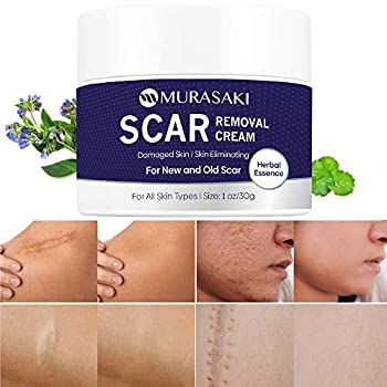 Scar cream,Scar removal,Scar treatment Scar Removal Cream- stretch marks remover cream for All Skin Types New and Old Scar-1 oz / 30g