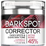 Dark Spot Remover for Face and Body – Dark Spot Corrector Treatment for All Skin Types - Hyperpigmentation Treatment Promotes Anti-Aging Skin Lightening - 1.7 fl. Oz