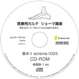 電子カルテ用シェーマ画像-検査図1003