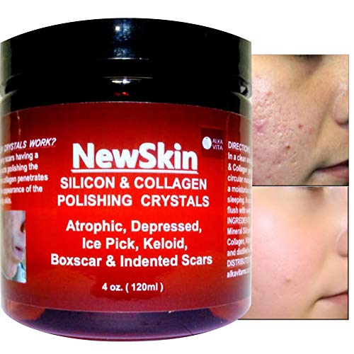 Acne Scars Removal Gel $18.99 Silicon & Collagen Polishing Organic Crystals Eliminate Indented Rolling Deep Sunken Skin Scars Fast Results by ALKAVITA