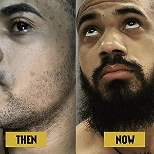 Advanced Beard Growth Kit | The Beard Club | Growth Vitamins, Beard Oil, Shampoo, Beard Spray, Comb, and Brush