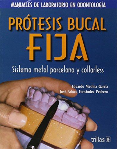 Pratesis bucal fija: Sistema Metal Porcelana Y Colarless