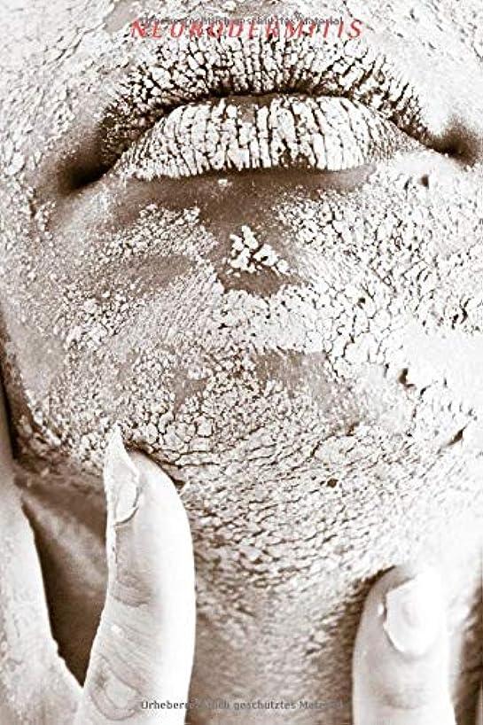 Neurodermitis: die perfekte Hilfe um die Krankheit besser zu verstehen und Tagebuch zu führen - Krankheitsverlauf , positive so wie negative Schübe - 120 leere Seiten mit Punkteraster (German Edition)