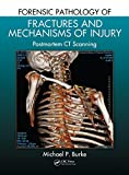 Forensic Pathology of Fractures and Mechanisms of Injury: Postmortem CT Scanning (English Edition)