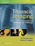 Thoracic Imaging: Pulmonary and Cardiovascular Radiology - W. Richard Webb