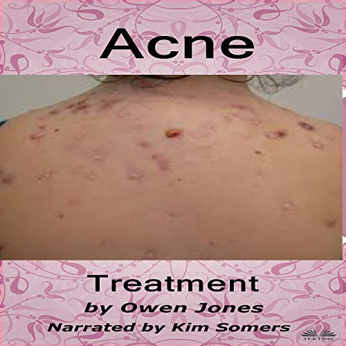 Acne Treatment: How To... cover art