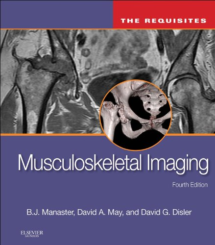 Musculoskeletal Imaging: The Requisites E-Book (Requisites in Radiology) (English Edition)