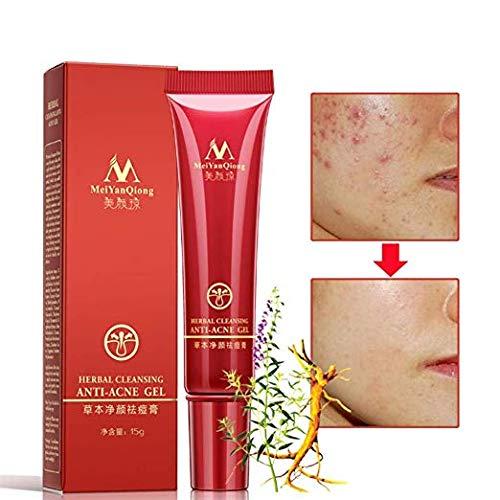 Crème anti-acné pour les cicatrices Réparation pour la peau Crème pour le visage Traitement de l'acné pour les points contre l'acné Crème éclaircissante pour les points noirs 15 ml