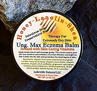 Max Strength Eczema Balm with Honey, Lanolin, Shea Butter Plus Vitamin B5, B3, E, and Allantoin 100% Natural Therapy for Extremely Dry, Itchy, Cracking Eczema Skin Face, Body & Scalp Rash