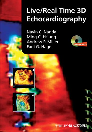 Live/Real Time 3D Echocardiography (English Edition)