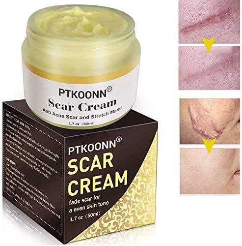 Cicatrici Crema,Crema per Cicatrici,Scar cream,Rimuovere Cicatrici Chirurgiche,Cicatrici...