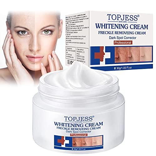 Whitening Cream, Anti blemish, Sommersprossen Creme, Flecken creme, Gesicht creme gegen Altersflecken/Dunkle Flecken, Contains niacinamide,Vitamin C, hyaluronic acid.30g