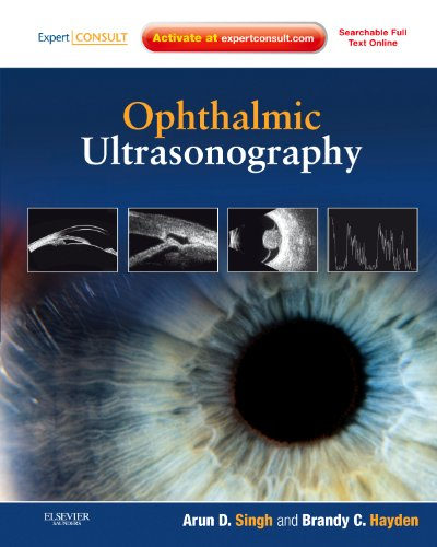 Compare Textbook Prices for Ophthalmic Ultrasonography: Expert Consult - Online and Print, 1e 1 Edition ISBN 9781437726367 by Singh MD, Arun D.,Hayden ROUB  CDOS, Brandy C.