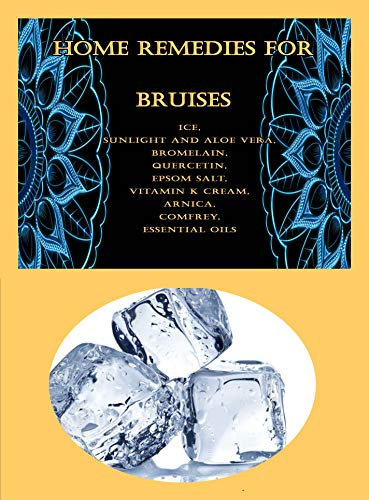 Home Remedies For Bruises: Ice, Sunlight and Aloe Vera, Bromelain, Quercetin, Epsom Salt, Vitamin K Cream, Arnica, Comfrey, Essential Oils (English Edition)