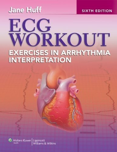 ECG Workout: Exercises in Arrhythmia Interpretation...