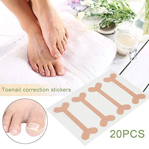 iBàste Ongles incarnés Correction Patch Physique Redressage Élastique Coton Ongle d'orteil Pédicure Autocollants 20 PCS