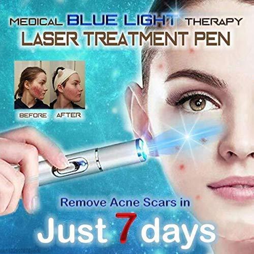 HAJKSDS Blaulicht Krampfadern Therapie Stift, Weiche Akne Narbenfehler Faltenentfernung, Blaulicht Laser Pen
