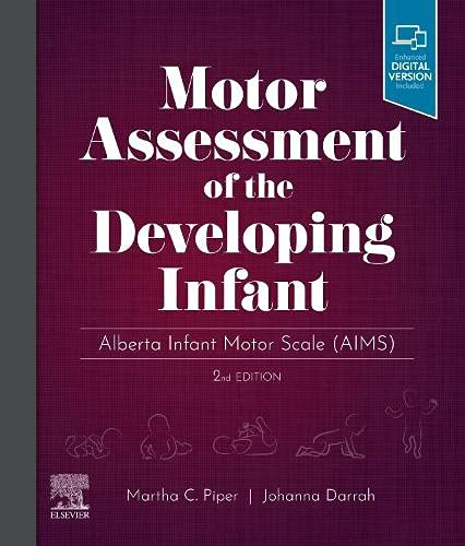 Motor Assessment of the Developing Infant: Alberta Infant Motor Scale (AIMS)