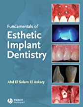 Fundamentals of Esthetic Dentistry, Second Edition