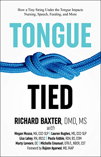 Tongue-Tied: How Tiny String Under the Tongue Impacts