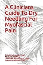 A Clinicians Guide To Dry Needling For Myofascial Pain