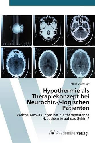 Hypothermie als Therapiekonzept bei Neurochir.-/-logischen Patienten: Welche Auswirkungen hat die therapeutische Hypothermie auf das Gehirn?