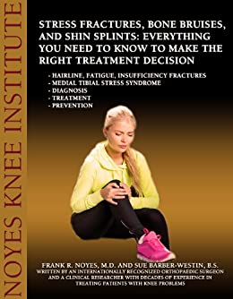 Stress Fractures, Bone Bruises, and Shin Splints: Everything You Need to Know to Make the Right Treatment Decision - Hairline, fatigue, insufficiency fractures ... - Medial tibial stress syndrome - Diagno by [Frank R. Noyes M.D, Sue Barber-Westin B.S.]