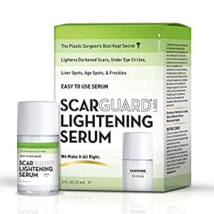 Scarguard Lightening Serum   Skin Brightening Formula for Darkened Scars, Age Spots, Under-Eye Circles, Freckles & Hyper-Pigmentation   0.5 fl oz