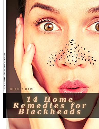 14 Home Remedies for Blackheads: The Best Home Remedies For Blackheads (English Edition)