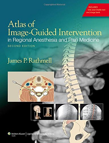 Compare Textbook Prices for Atlas of Image-Guided Intervention in Regional Anesthesia and Pain Medicine Second Edition ISBN 9781608317042 by Rathmell MD, James P.
