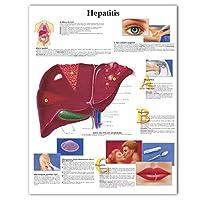 YQQICC 肝炎チャートポスター印刷キャンバス絵画医学教育医師のオフィスの教室のための壁の写真-55x70cmフレームなし