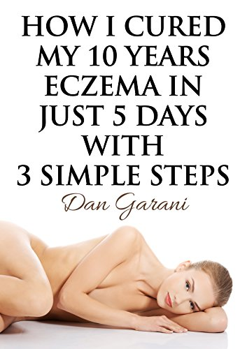 How I Cured My 10 Years Eczema In Just 5 Days With 3 Simple Steps, Skin care, eczema cure, get rid of eczema forever, easy and natural, eczema treatment, eczema remedies, stop eczema forever