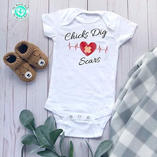 Chicks Dig Scars Baby Onesie CHD Heart Warrior Toddler Shirt CHD Heart Warrior Baby Romper product image