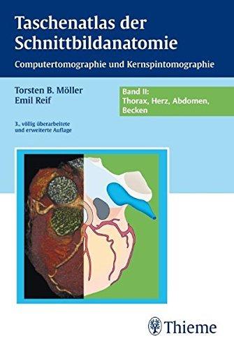 Taschenatlas der Schnittbildanatomie: Band II: Thorax, Herz, Abdomen, Becken by Torsten Bert Möller (2010-10-20)