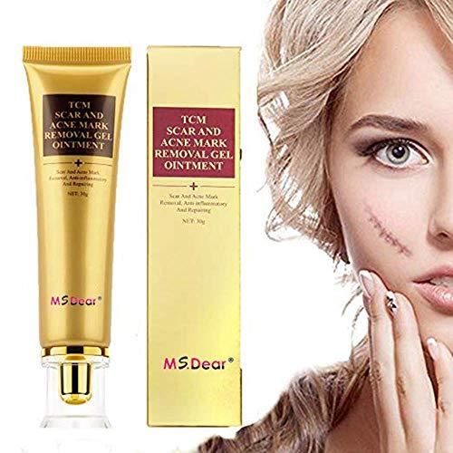GARYOB Crème pour éliminer les cicatrices d'acné, cicatrices et cicatrices, traitement pour le visage et le corps, cicatrices, acné, points d'étirement.