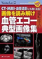 画像を読み解け 血管エコー典型画像集: CT・MRI・血管造影にも強くなる! WEB動画 (Vascular Lab別冊)