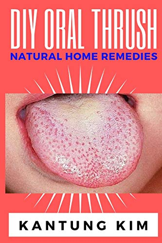 DIY Oral Thrush Natural Home Remedies: The Effective Step By Step Guide To Permanently End Oral Thrush