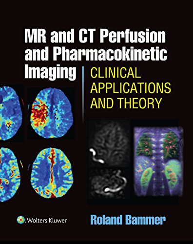 MR and CT Perfusion and Pharmacokinetic Imaging: Clinical Applications and Theoretical Principles (English Edition)