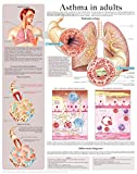 Asthma in adults e-chart: Full illustrated