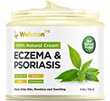 Wellution Natural Eczema and Psoriasis Cream – Intensive All in 1 Treatment – Soothe & Relieve Skin Irritations Quickly– Made in USA