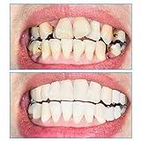 Zoom IMG-2 2 paia dentiere denti cosmetici
