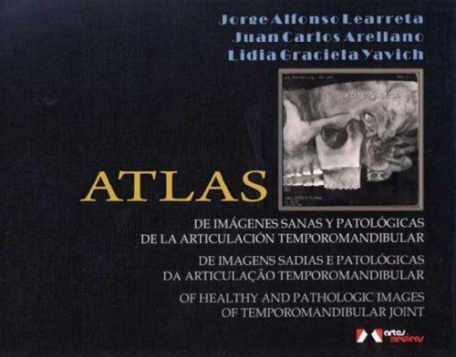 Atlas: Of Healthy and Pathologic Images of Temporomandibular Joint by Learreta, Jorge Alfonso, Arellano, Juan Carlos, Yavich, Lidi (2009) Hardcover