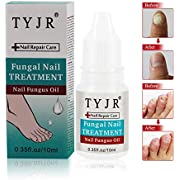 Nail Fungus Treatment,Nail Treatment Essence,Nail Antifungal Treatment,Fungus Stop,Toenails and Fingernails Whitening,Nail Fungus Removal (10ml)