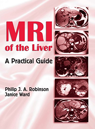 MRI of the Liver: A Practical Guide (English Edition)