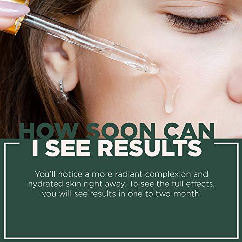 51pIvHM9FNL - NuOrganic Face Lifting Serum | Anti-Aging Serum | Organic Formula with MATRIXYL 3000, Vitamin C, Hyaluronic Acid, Plant Stem Cells, Argireline - Lifts, Firms & Tightens Skin ● 30ML