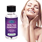 Skin Tag Remover,Extra Strength Skin tag Removal Serum,Made of Natural Plant Extracts,Zero-Pain,No Scars,Suitable for Face and Body