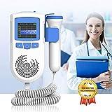 FGBFDG 2.5MHz Prenatal Fetal Ultrasonido Baby Heartbeat Monitor Pocket Embarazada Fetal Pulse Detector Heart Rate Meter 2 Modos,A