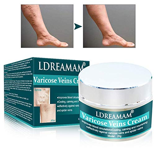 Krampfadern Creme,Anti Krampfadern,Varicose veins,krampfadern entfernen Creme Anti schwere & müde Beine,Besenreiser,Venen & Adern entfernen