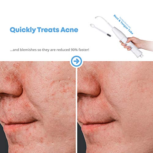 Pure Daily Care NuDerma Skin Wand - Portable Handheld High Frequency Skin Therapy Machine - Skin Tightening - Wrinkle Reducing - Acne Treatment - Dark Circles - Puffy Eyes - Hair Follicle Stimulator - All Natural